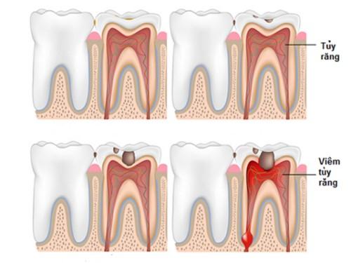 răng bị viêm tủy