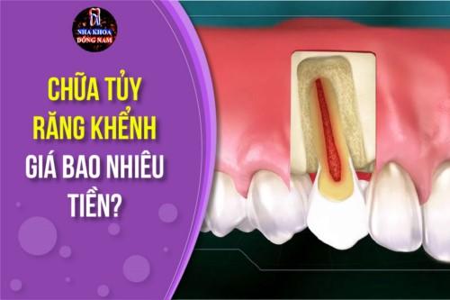 chữa tủy răng khểnh giá bao nhiêu tiền