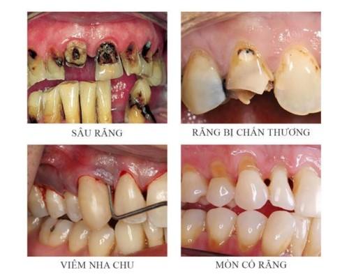 các trường hợp chữa tủy răng