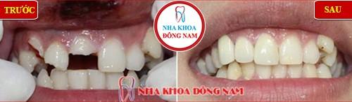 chữa tủy bọc sứ cho răng bị gãy