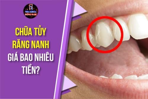 chữa tủy răng nanh hết bao nhiêu tiền