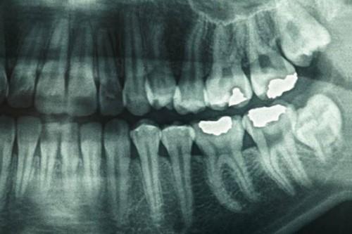 chụp phim x quang răng