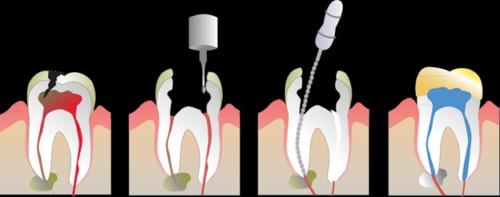 chữa tủy răng nhai