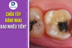 chi phí chữa tủy răng nhai bao nhiêu tiền