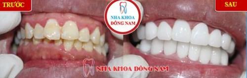 Khuyến mãi răng sứ zirconia nhân dịp khai xuân 2019 2
