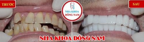 Khuyến mãi răng sứ emax nhân dịp khai xuân 2019