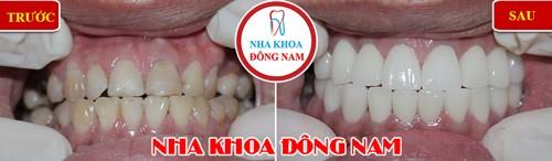 Khuyến mãi răng sứ emax nhân dịp khai xuân 2019 9