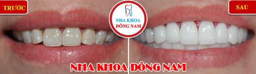 Khuyến mãi răng sứ zirconia nhân dịp khai xuân