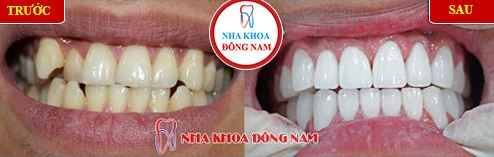 Khuyến mãi răng sứ nhân dịp khai xuân 1