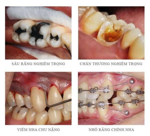 trường hợp nên nhổ răng cấm