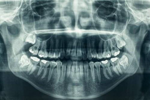 chụp x quang kiểm tra răng