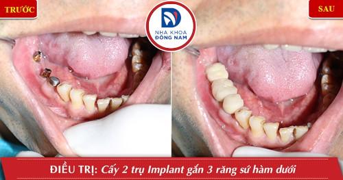 trồng răng cấm bằng implant