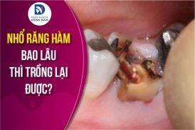 Nhổ răng hàm bao lâu thì trồng lại được