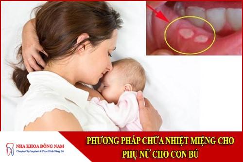 phương pháp chữa nhiệt miệng cho phụ nữ cho con bú