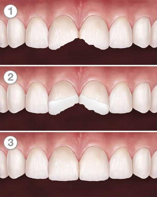 trám răng mẻ