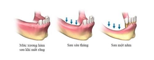 xương hàm bị tiêu khi mất răng
