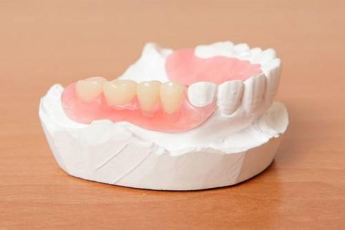 trồng răng nhai bằng hàm tháo lắp