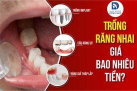 trồng răng nhai giá bao nhiêu tiền