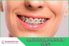 bị mất răng hàm có niềng răng được không