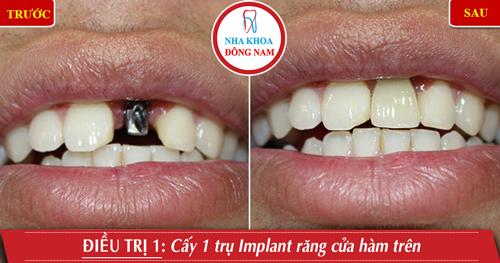Cấy 1 trụ Implant răng cửa hàm trên