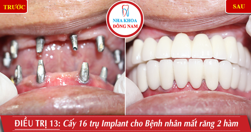 Cấy 16 trụ Implant cho bệnh nhân mất răng 2 hàm