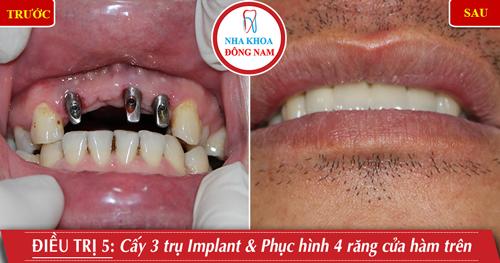 Cấy 3 trụ Implant gắn 4 răng cửa hàm trên
