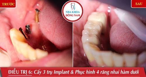 Cấy 3 trụ Implant gắn 4 răng nhai hàm dưới