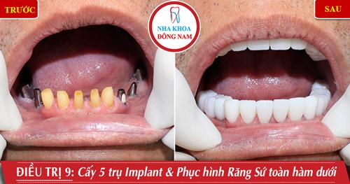 Cấy 5 răng Implant phục hình răng sứ toàn hàm dưới