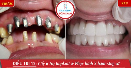 Cấy 6 trụ Implant phục hình 2 hàm răng sứ