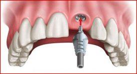 cấy ghép implant răng cửa giá bao nhiêu