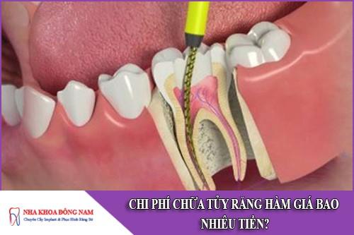 chi phí chữa tủy răng hàm giá bao nhiêu tiền