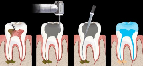 quý trình chữa tủy răng