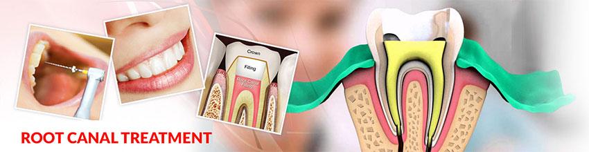 Trám răng chữa tủy tại nha khoa đông nam