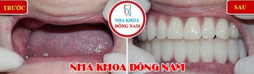 phục hình toàn bộ hàm răng