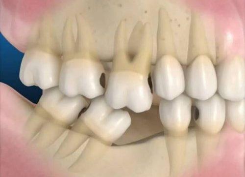 mất răng hàm lâu năm có trồng lại được không