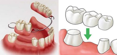 phương pháp trồng răng truyền thống