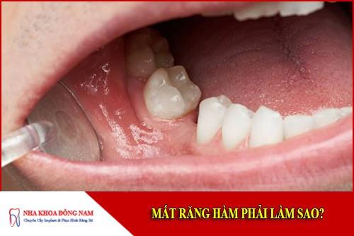 mất răng hàm phải làm sao