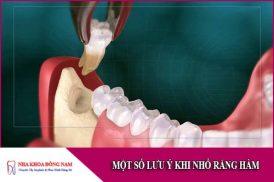 một số lưu ý khi nhổ răng hàm