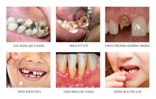 trường hợp cần nhổ răng hàm