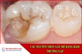 Các nguyên nhân gây mẽ răng hàm thường gặp
