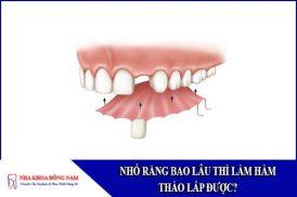 nhổ răng bao lâu thì làm hàm tháo lắp