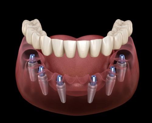 cấy ghép implant toàn hàm