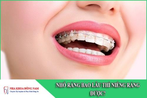 nhổ răng bao lâu thì niềng răng được