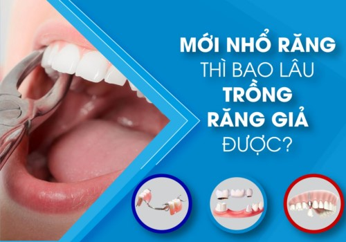 nhổ răng bao lâu thì trồng răng giả là hợp lý nhất