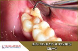 răng hàm bị mẻ có trám được không