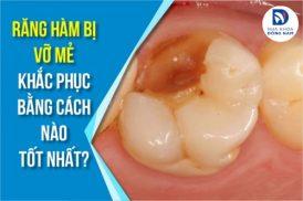 Răng hàm bị vỡ mẻ khắc phục bằng cách nào tốt nhất