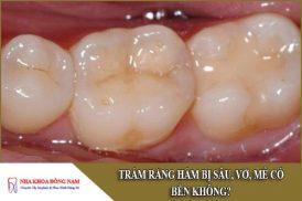 trám răng hàm bị sâu, vỡ, mẻ có bền không