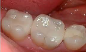 trám răng GIC