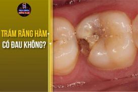 trám răng hàm có đau không