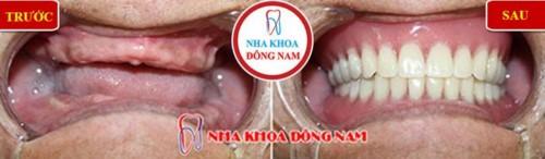trồng răng implant 4s cho người mất răng toàn hàm
